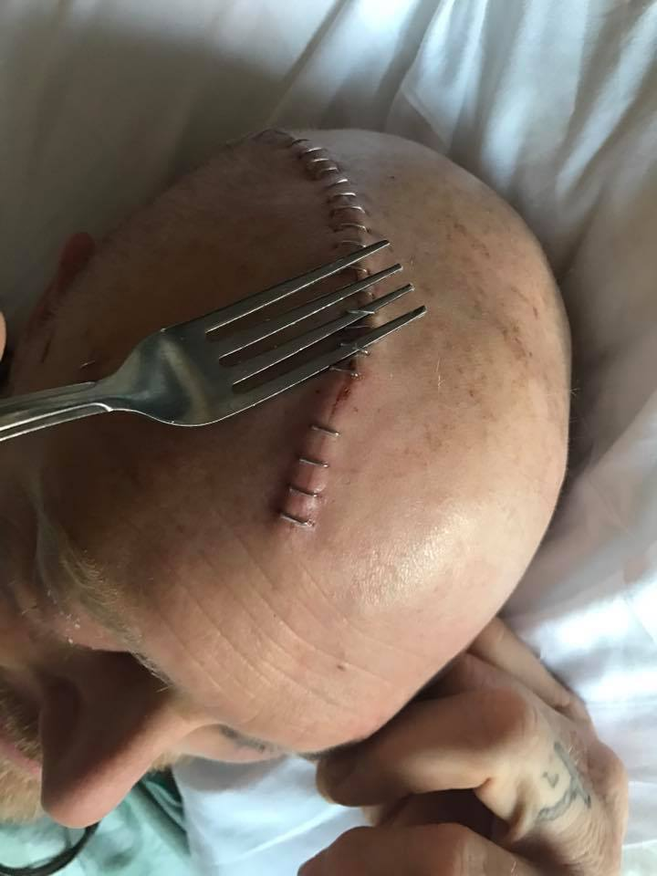 """Before Vern fully understood his situation, he attempted to remove the staples in his head with a fork. They managed to stop him after he got three of them out. Those who know him say, """"Sounds like Vern."""""""